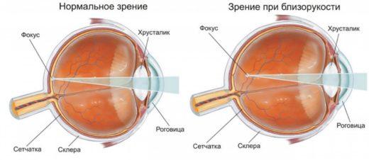 Глазное яблоко в норме и при близорукости