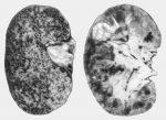Гнойно-воспалительный процесс в почке