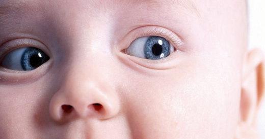 Голубые белки глаз у ребёнка