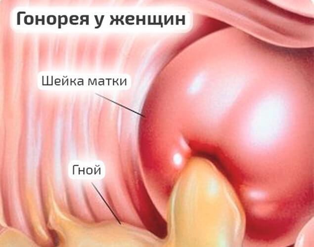 Гонорея у женщин: симптомы и лечение, первые признаки и проявления с фото, инкубационный период