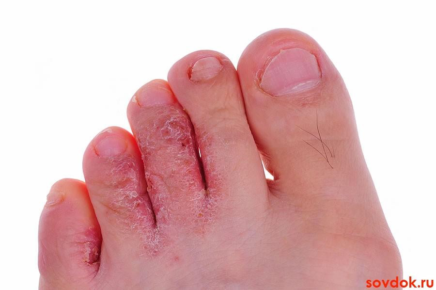 Как проявляется грибок на ногах на ступнях