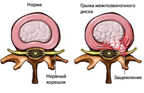 Норма и грыжа межпозвоночного диска