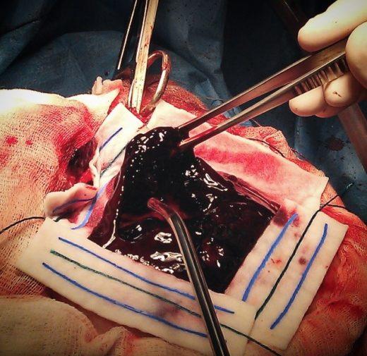 Хирургическое удаление гематомы