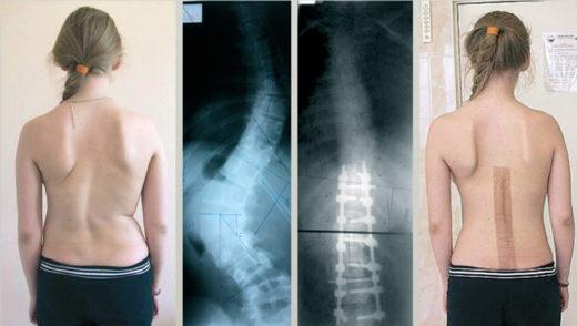 Хирургическое выравнивание позвоночника