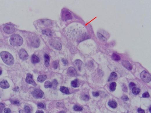 Хламидии под микроскопом