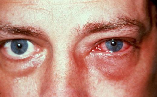 Глаза заражённого хламидиозом