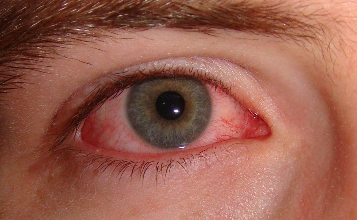 Пелена Перед Глазом Может Быть Признаком Инфекции