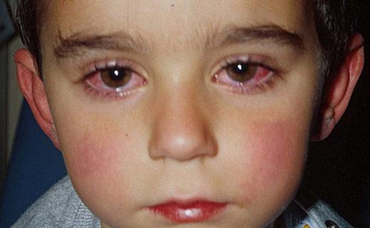 Мальчик с хламидийным конъюнктивитом