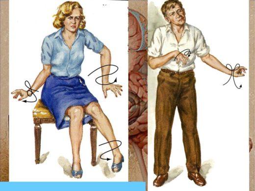 Мужчина и женщина с симптомами хореи Гентингтона
