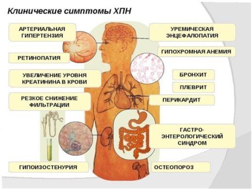 Хроническая почечная недостаточность (схема)