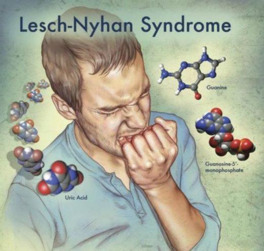 Болезнь Леша-Найхана