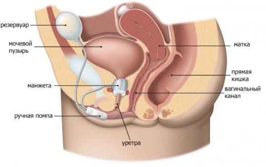 Имплантация искусственного сфинктера у женщин