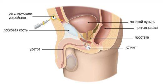 Имплантация слинга у мужчин