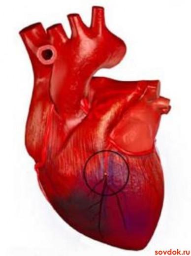 инфаркт миокарда