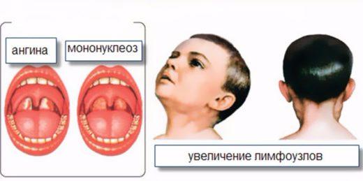 Инфекционный мононуклеоз и ангина
