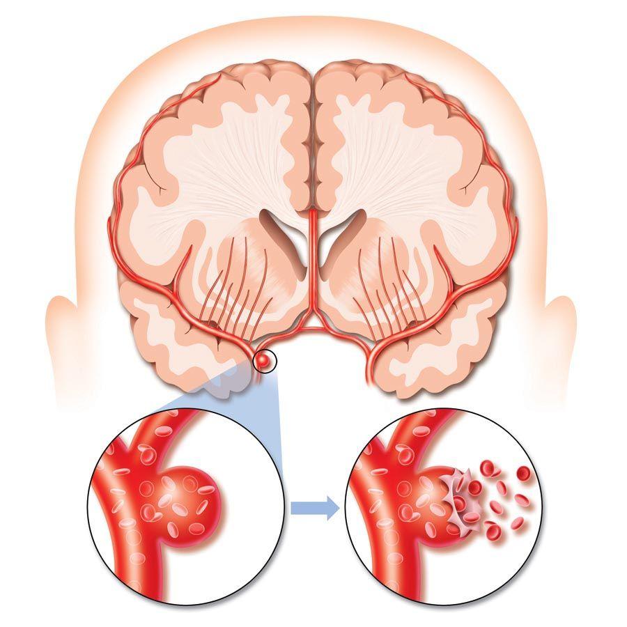 Как выявить ишемический инсульт: признаки, которые не обманут