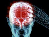 Из-за чего может развиться энцефалит головного мозга?