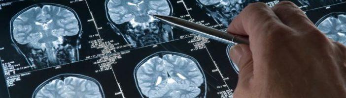 Как можно вылечить энцефаломиелит?