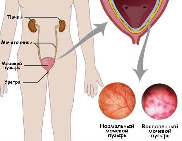 Почему мужчины болеют циститом редко
