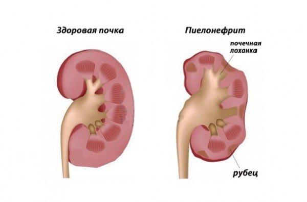 пиелонефрит профилактика заболевания