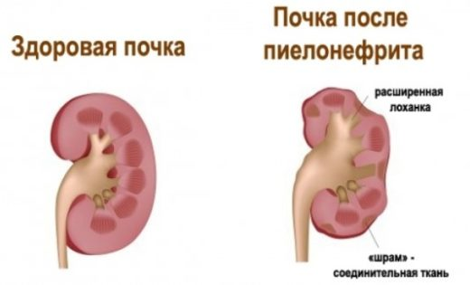 Пиелонефрит симптомы диета