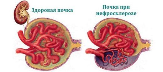 Какие изменения происходят при нефросклерозе с почкой