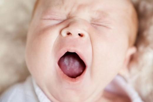 Кандидозный стоматит у грудного ребёнка