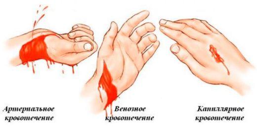 Артериальное, венозное и капиллярное кровотечение
