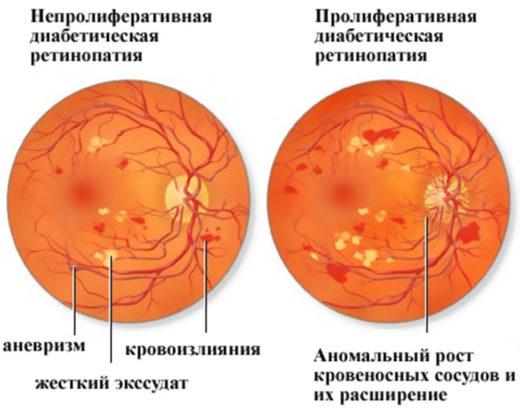 Картина глазного дна при диабете