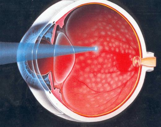 Картина глазного дна при фотокоагуляции