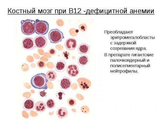 Картина клеток крови при В12-дефицитной анемии
