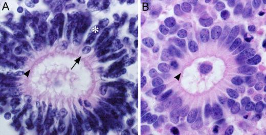 Картина ретинобластомы под микроскопом
