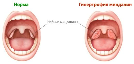 увеличенные миндалины
