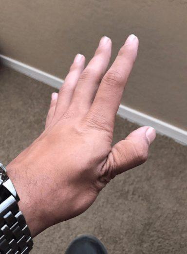 Кисть с вывихнутым большим пальцем