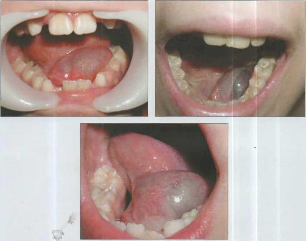 Воспаление слюнных желез у детей фото