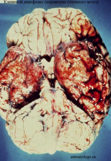 Мозг, поражённый болезнью