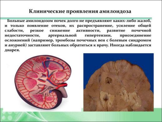 Клинические проявления амилоидоза