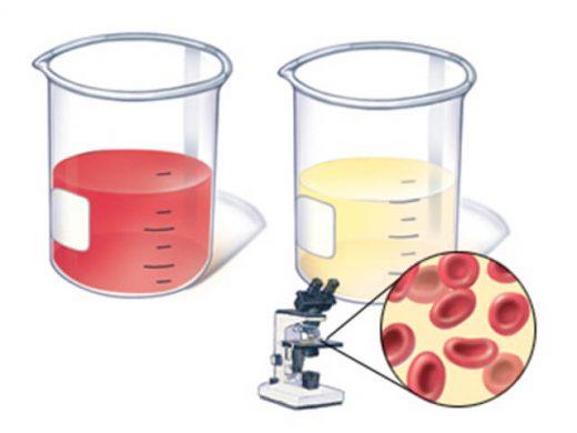 колбы с мочой, микроскоп, эритроциты