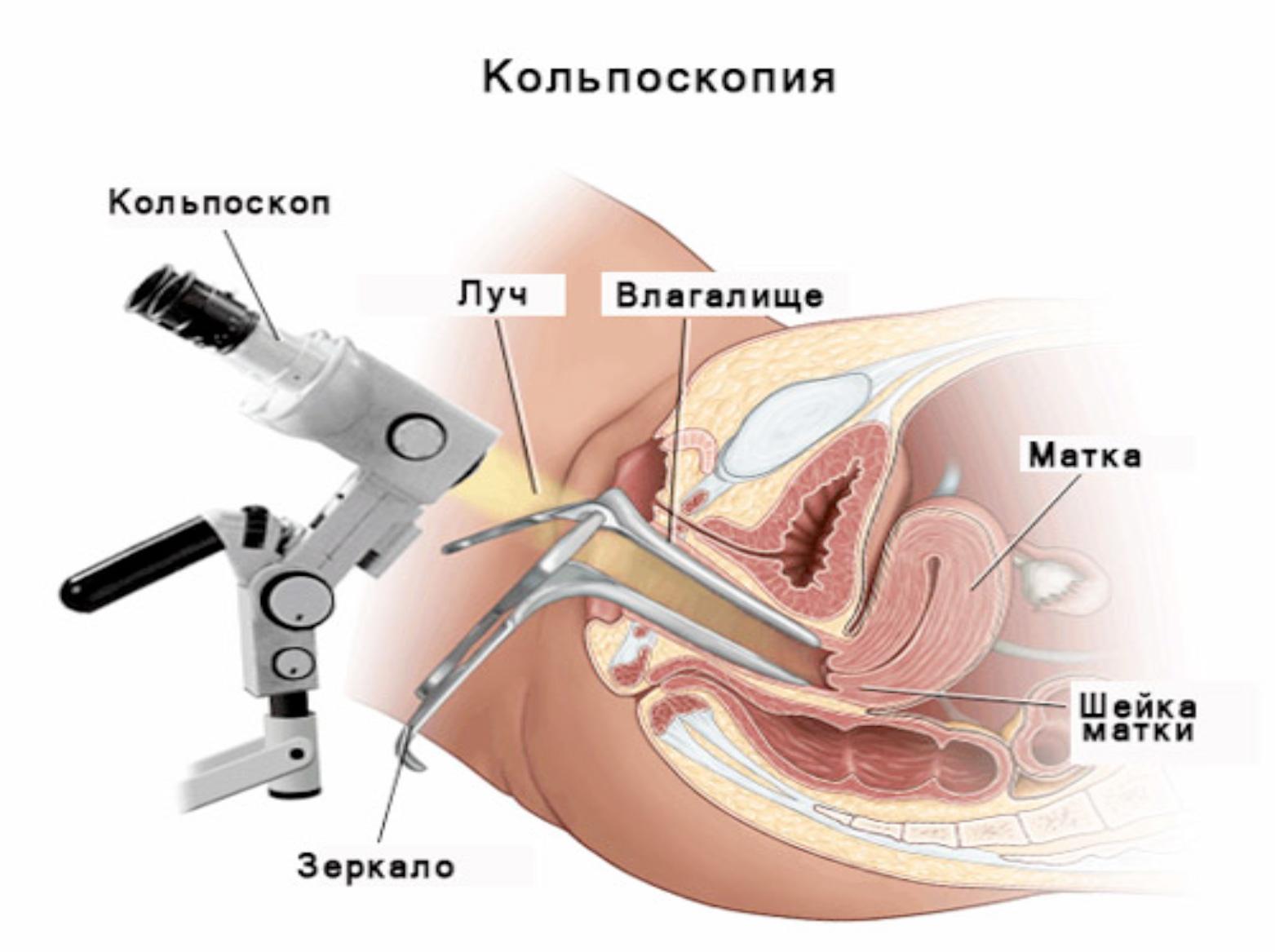 analniy-seks-posle-viskablivaniya