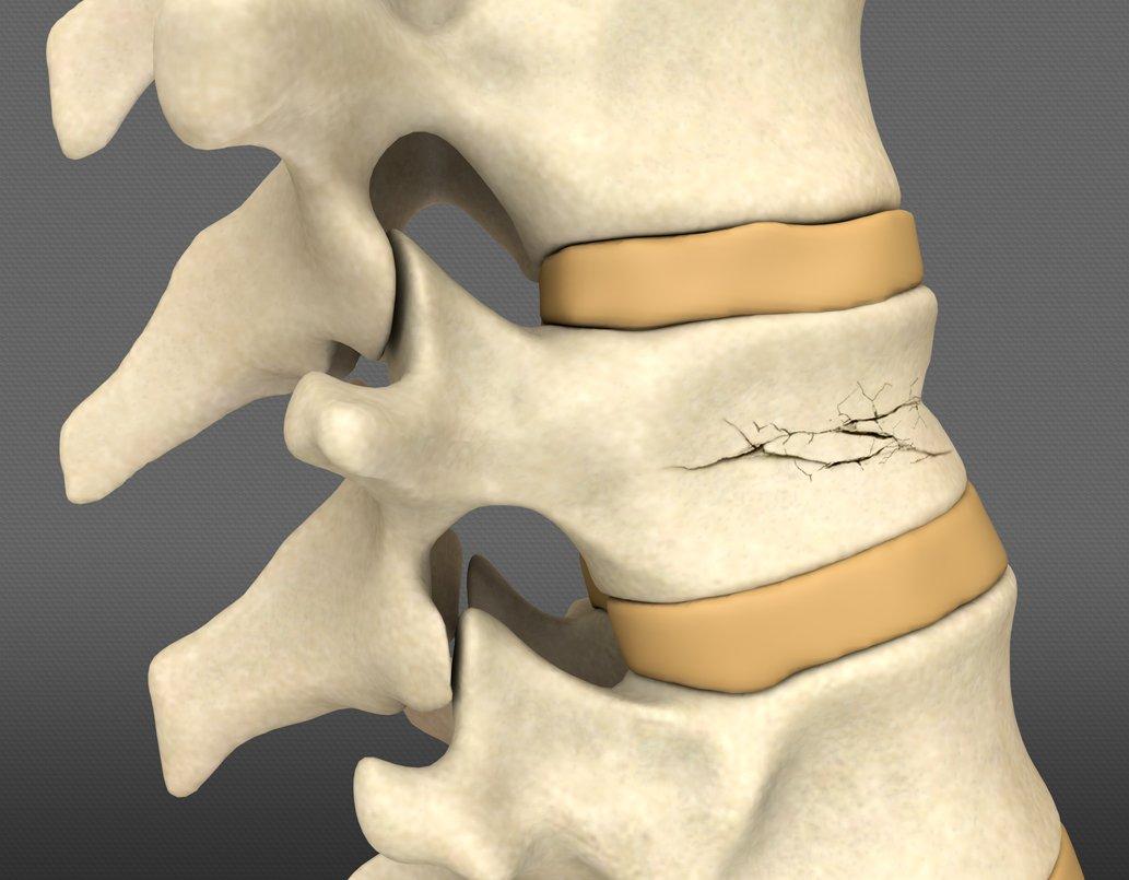 Лечение компрессионного перелома грудного отдела позвоночника