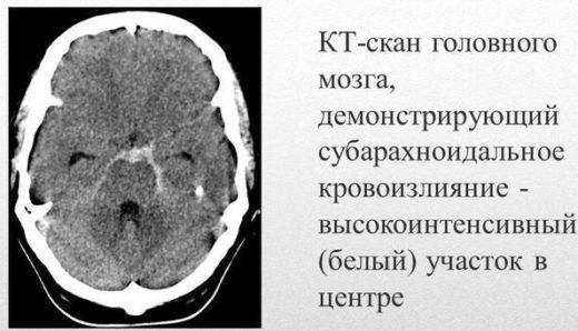 Компьютерная томография при субарахноидальном кровоизлиянии