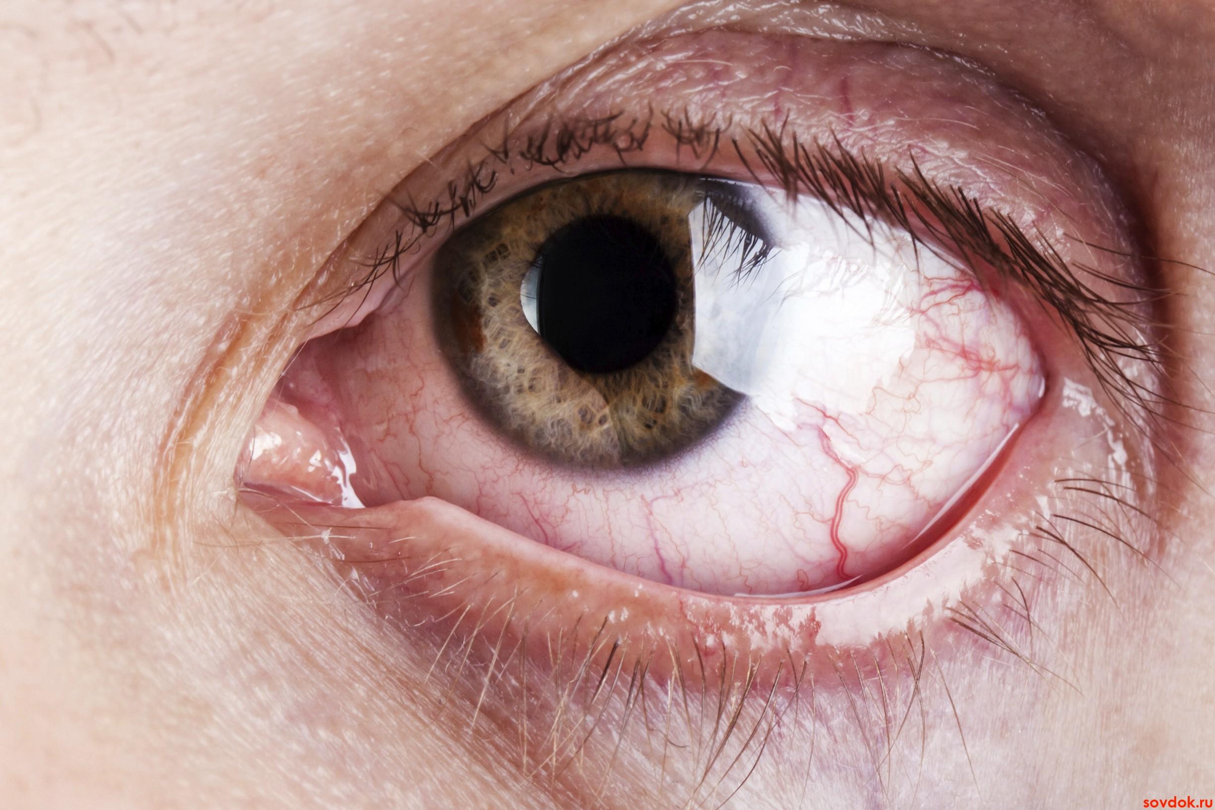 Диабетическая  ретинопатия: новое о развитии диабетического  поражения  глаз