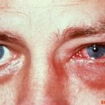 Конъюнктивит. Его симптомы и лечение