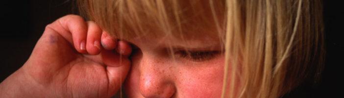 Конъюнктивит у ребёнка