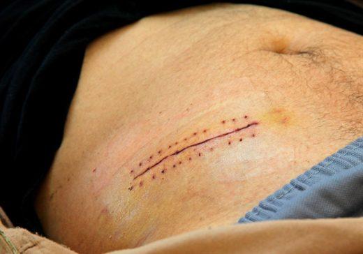 Косметический шов после аппендэктомии