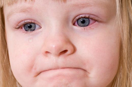 Красные белки глаз у ребёнка