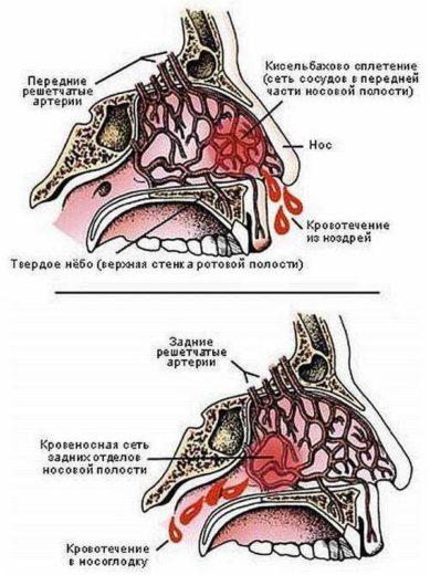 Схематическое изображение переднего и заднего кровотечения