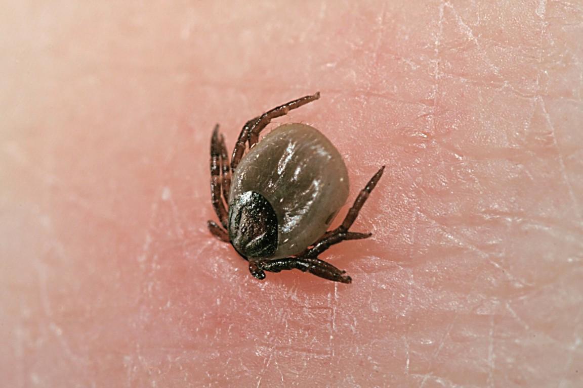 Какую опасность несёт укус клеща: крымская геморрагическая лихорадка