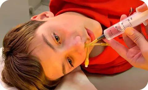 Мальчик со специальными трубками, введёнными в полость носа и соединёнными со шприцом