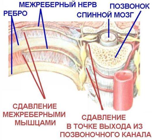 Причины межрёберной невралгии — схема